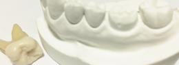一部の歯を失ってしまった