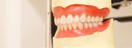 全体的に歯を失ってしまった