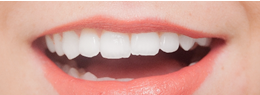 もっと歯を白くしたい