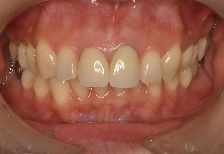 内部吸収した歯をMTAセメントにて保存したケース